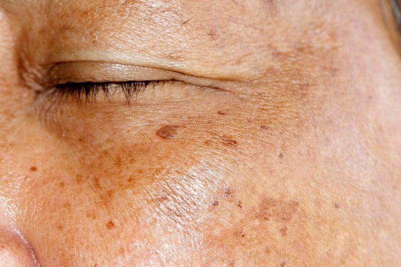 Hyperpigmentation/Melasma under Eye